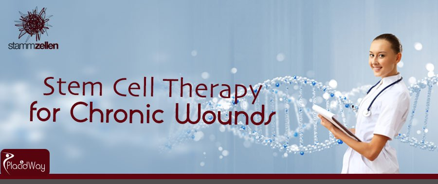 SCT Vienna Stem Cell Therapy for Chronic Wounds