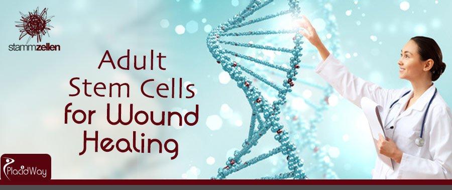 Stem Cell Treatment Packages Vienna Austria