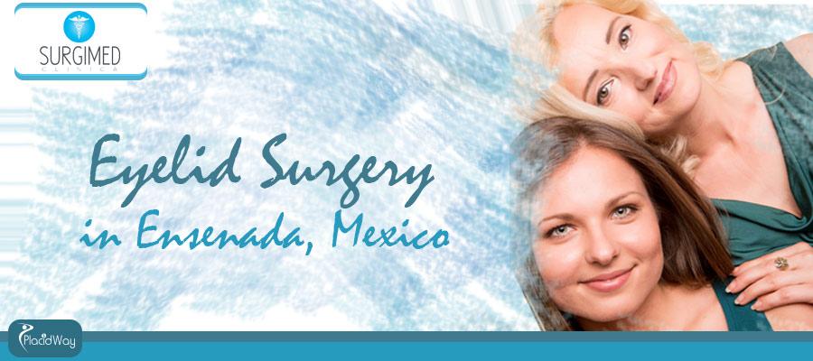 Eyelid surgery Ensenada, Mexico