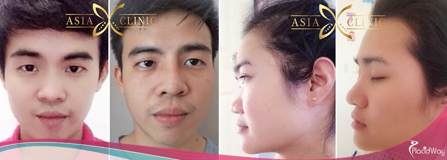 Nose Surgery Thailand, Cosmetic Procedures