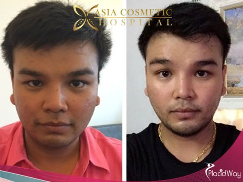 Male Chin Augmentation, Chin Surgery