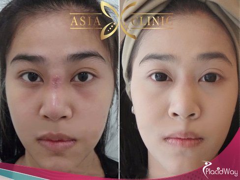 Scar Removal Surgery, Cosmetic Surgery Thailand