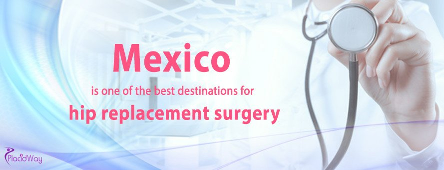 Hip Replacement Surgery In Mexico, Orthopedic Surgery Abroad