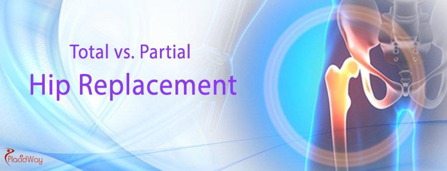 Total Hip Replacement, Partial Hip Replacement, Medical Tourism
