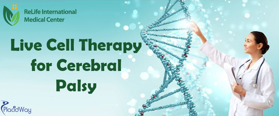 Live Cell Cerebral Palsy Treatment Beijing China