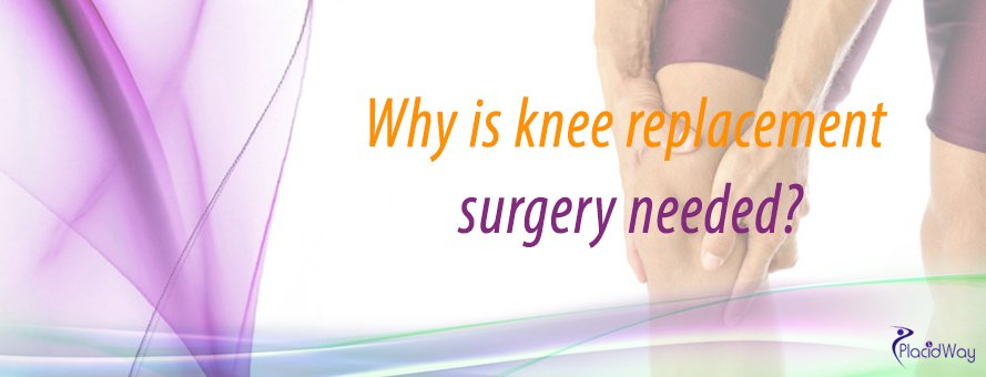 Orthopedic Surgery In Asia, Knee Replacement,  Knee Surgery Abroad