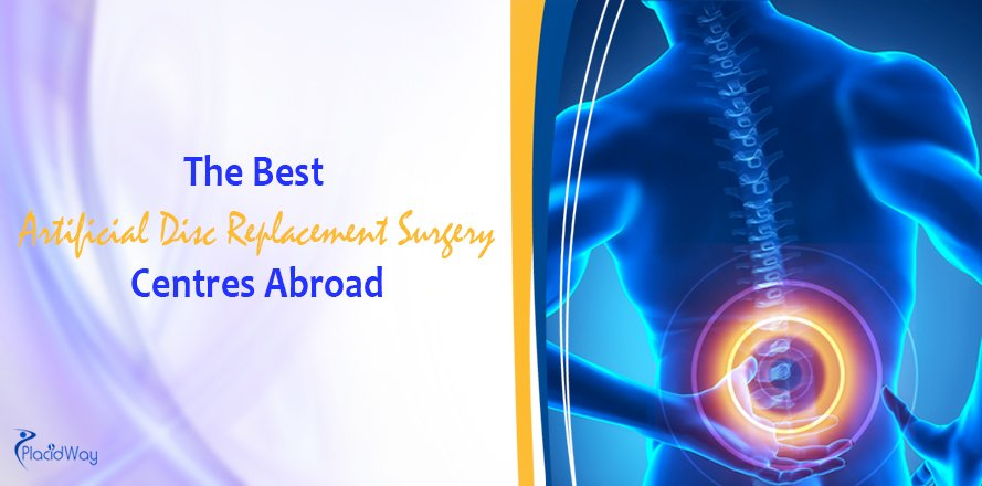 Artificial Disc Replacement Surgery Centres Abroad, Back Pain Treatment