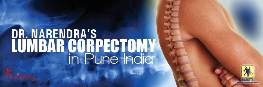Lumbar Corpectomy in Pune India