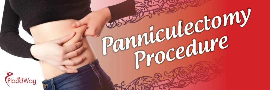 Panniculectomy Procedure, Weight Loss Surgery