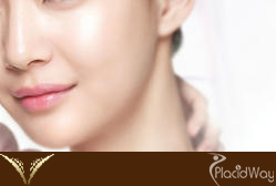 Nose Surgery Thailand