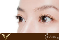 Double Eyelid Surgery Thailand