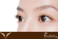 Double Eyelid Surgery Thailand