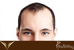 Hair Transplantation Thailand