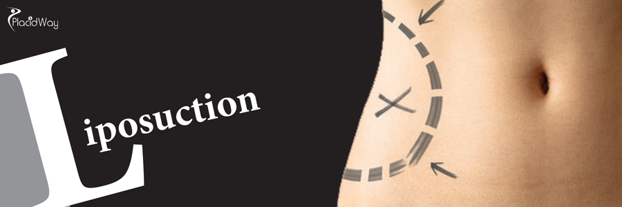 Liposuction in South Korea