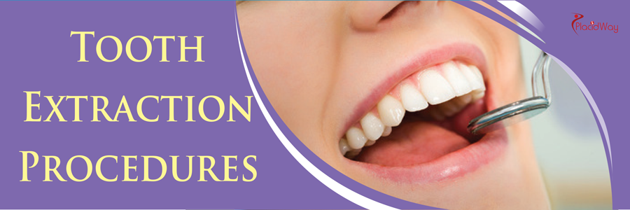 Dentistry - Tooth Extraction Treatment Overview