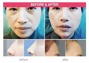 Dermal Filler, Skin Treatment, Seoul, South Korea
