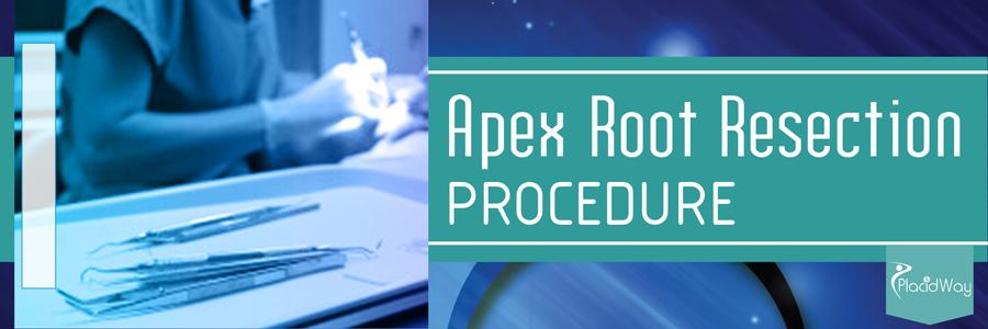 Apex Resection Procedure