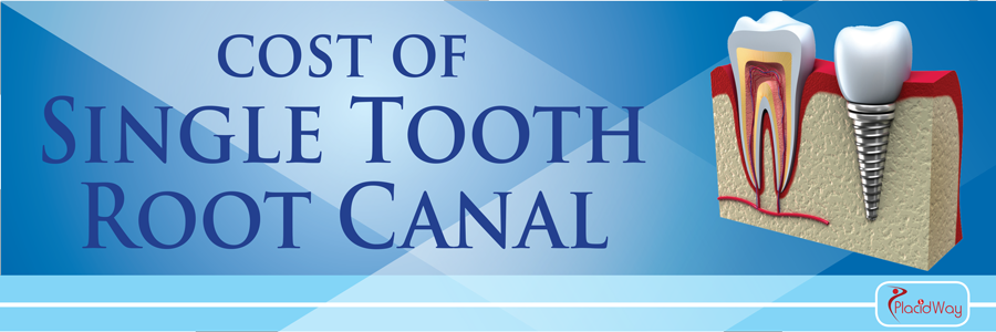 Root-Canal-(per-tooth)-Treatment-Abroad-Cost