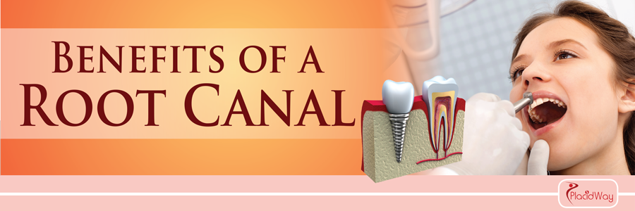 Root-Canal-Treatment-Abroad Benefits