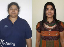 Obesity Surgery, Before and After Images