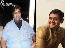 Obesity Surgery in India, Before and After Pictures