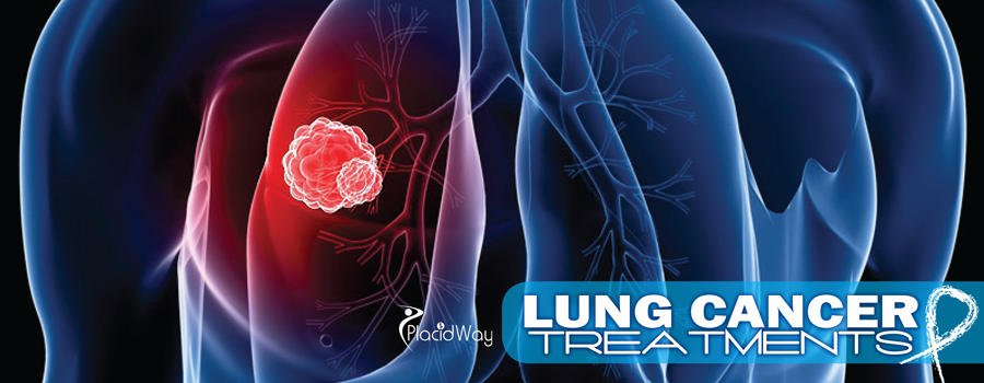 Lung-Cancer-Treatments