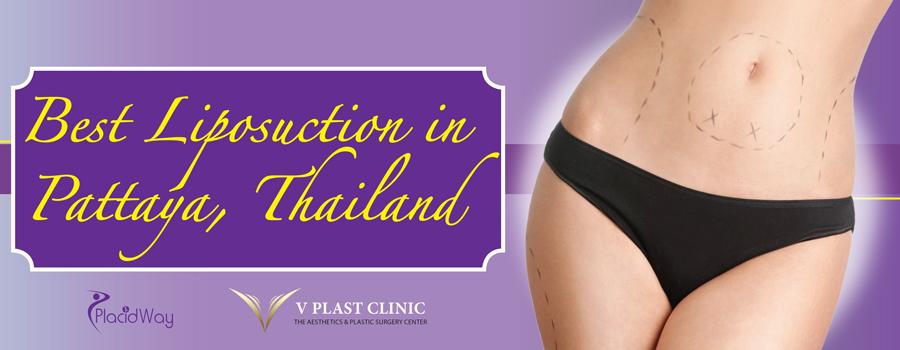 Best-Liposuction-in-Thailand