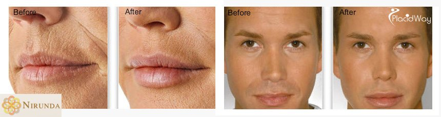 Before and After Images of Filler for Facial Rejuvenation in Thailand, Nirunda Clinic, Bangkok