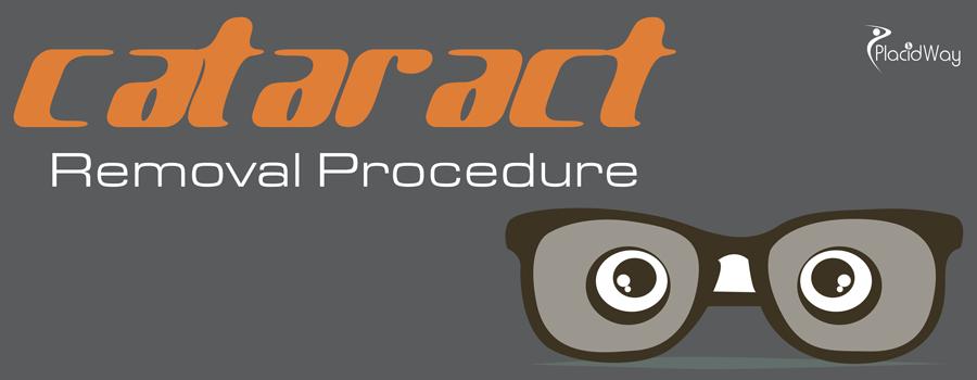 Cataract Removal Procedure