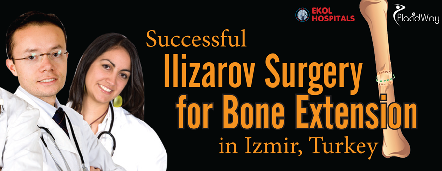 Successful Ilizarov Surgery for Bone Extension in Izmir, Turkey