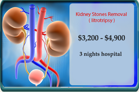 Kidney Stones Removal in Mexico