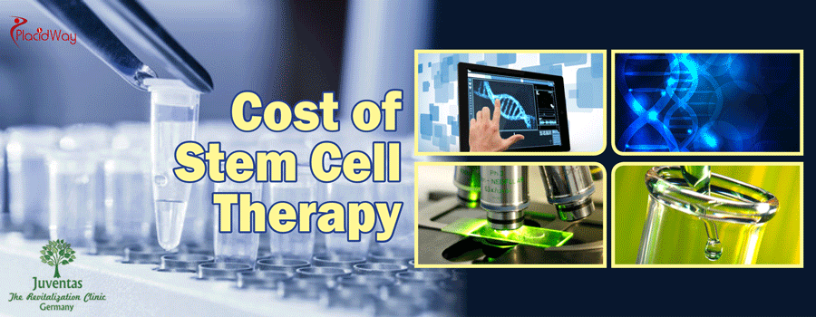Cost of Stem Cell Therapy in Germany