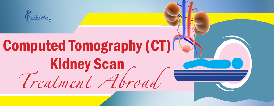 Computed Tomography (CT) Kidney Scan