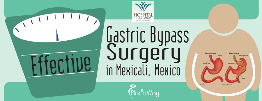 Effective Gastric Bypass Surgery in Mexicali, Mexico