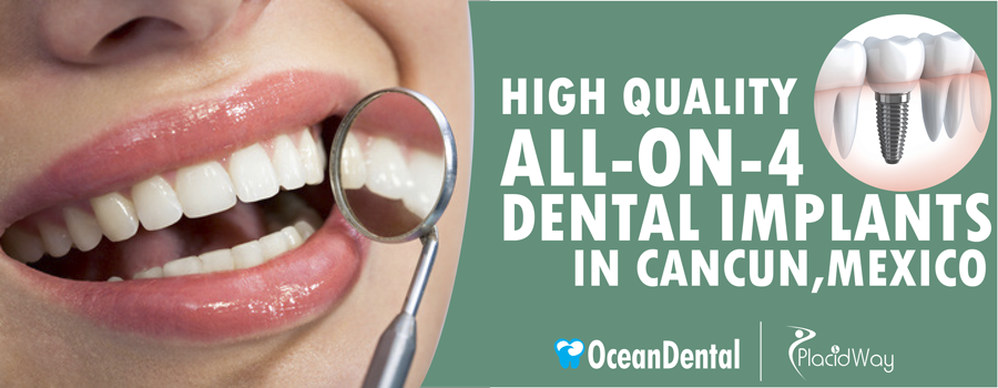 All-On-4 Dental Implants in Cancun, Mexico