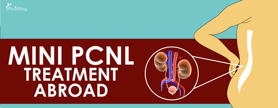 Mini PCNL Treatment Abroad