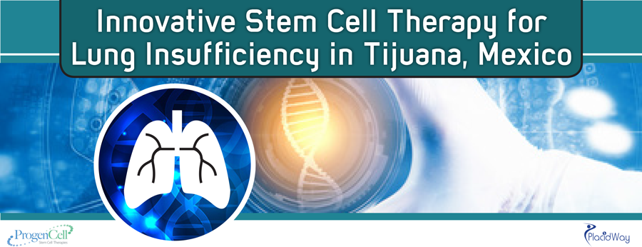 Stem Cell Therapy for Lung Insufficiency in Tijuana, Mexico