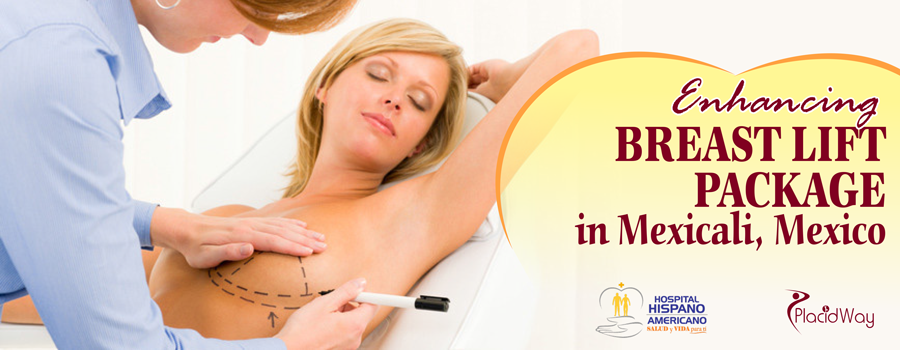 Breast Lift Package in Mexicali, Mexico