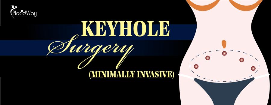 Keyhole Surgery