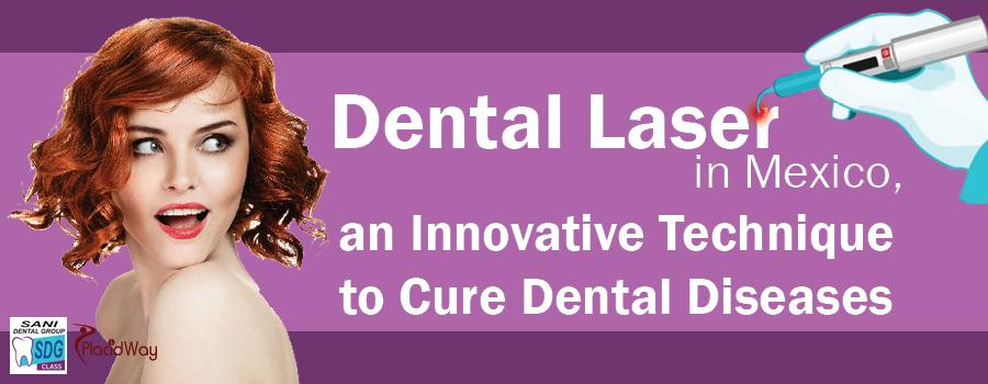 Innovative Dental Laser in Los Algodones Mexico