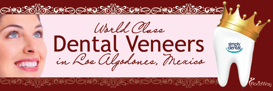 World Class Dental Veneers in Los Algodones, Mexico