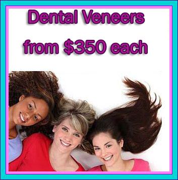 Dental Veneers Cost in Mexico