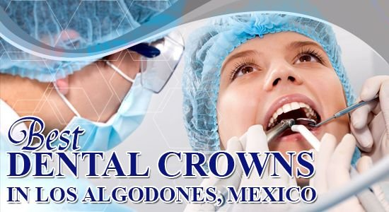 Dental Crown Cost in Mexico