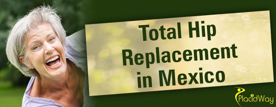Total Hip Replacement in Mexico Patient Testimonial