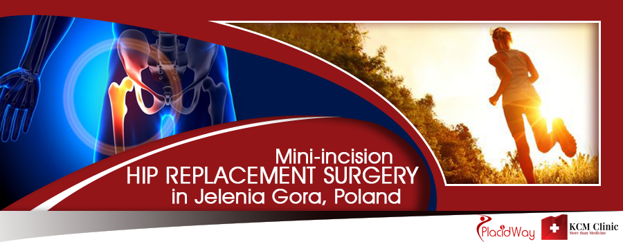 Mini-incision Hip Replacement Surgery in Jelenia Gora, Poland