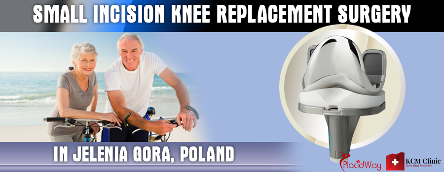 Small Incision Knee Replacement Surgery in Jelenia Gora, Poland