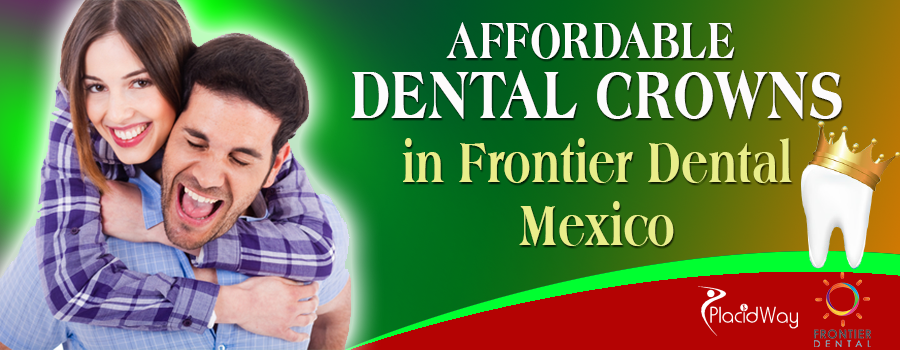 Affordable Dental Crowns in Frontier Dental Mexico
