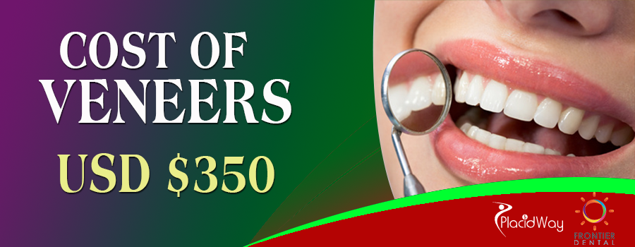 Cost of Veneers in Frontier Dental Mexicali, Mexico