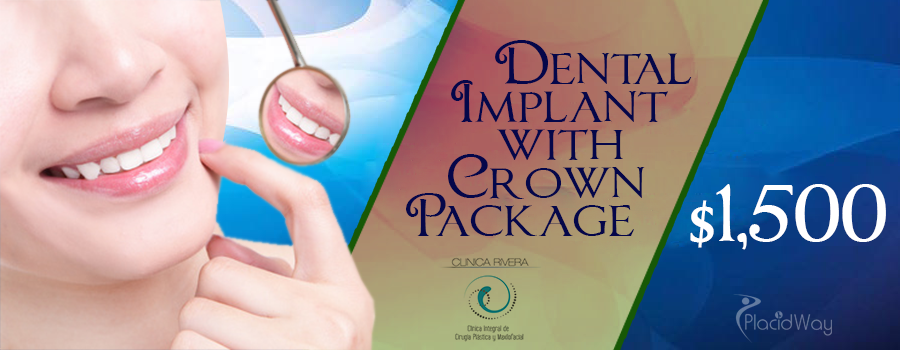 Price Dental Implant with Crown in San Jose, Costa Rica
