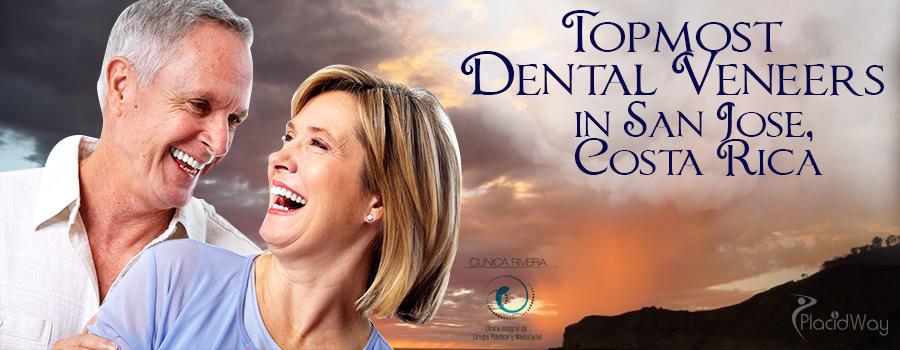 Topmost Dental Veneers in San Jose, Costa Rica